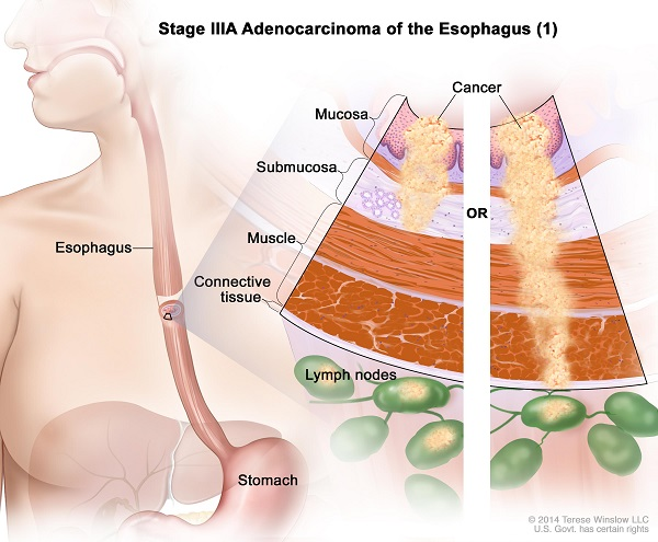 Ung thư thực quản giai đoạn III có di căn hạch vùng nhưng chưa di căn đến các cơ quan ở xa