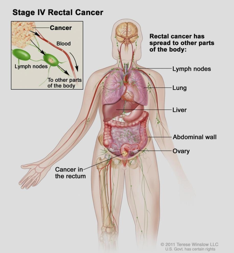 Ung thư trực tràng di căn gan
