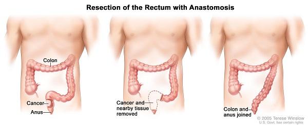 Ung thư trực tràng cho tiên lượng sống tốt nếu được điều trị tích cực