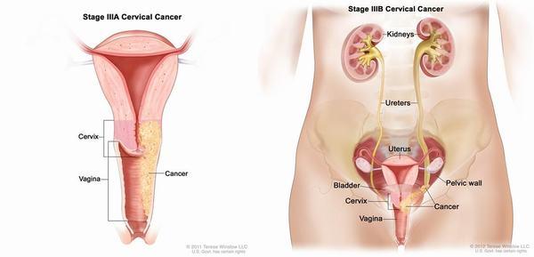 Ung thư tử cung là bệnh ung thư nguy hiểm thường gặp ở phụ nữ trên 40 tuổi