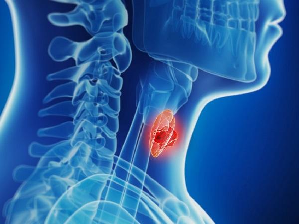 Ung thư tuyến giáp chiếm khoảng 1% trong các bệnh ung thư