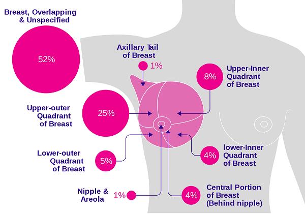 Ung thư vú có mấy loại