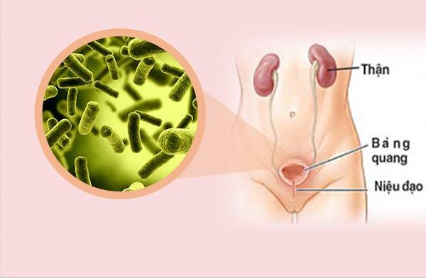 Viêm bàng quang thường gặp ở nữ