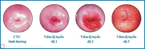 Các mức độ viêm lộ tuyến cổ tử cung
