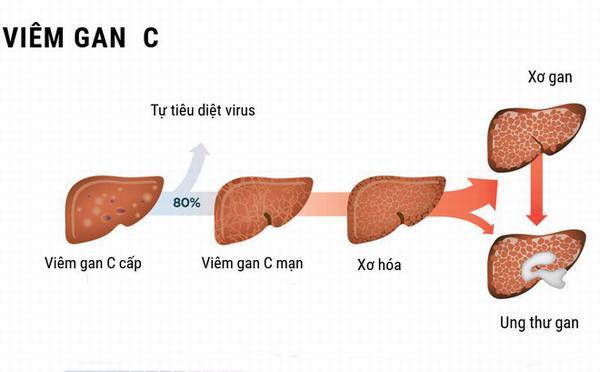Virut viêm gan C là nguyên nhân gây bệnh viêm gan C