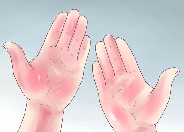 Lòng bàn tay đỏ là một trong những triệu chứng xơ gan thường gặp