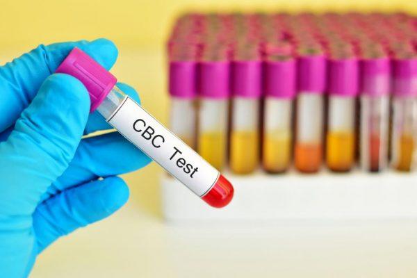 Xét nghiệm công thức máu toàn phần