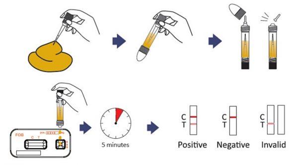 Cách thực hiện xét nghiệm tìm máu trong phân.