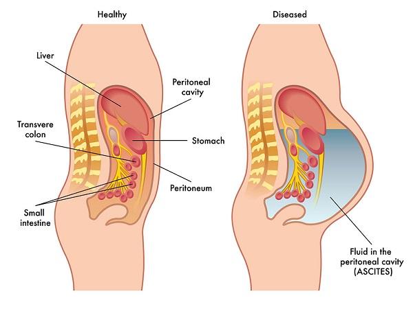 Cổ trướng là triệu chứng điển hình ở bệnh nhân xơ gan giai đoạn mất bù