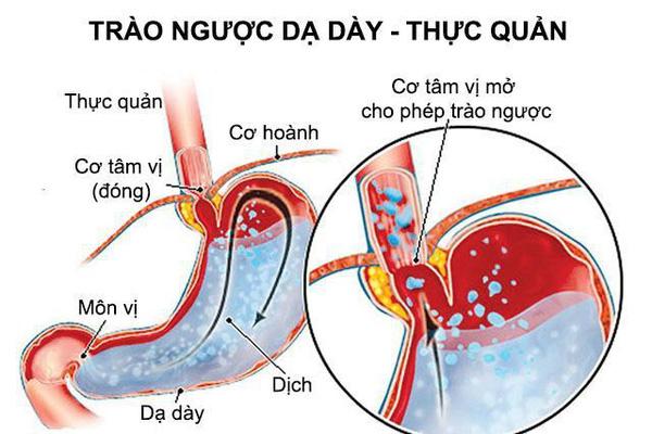Trào ngược dạ dày - thực quản là bệnh khá phổ biến với tỷ lệ mắc bệnh ngày càng gia tăng.