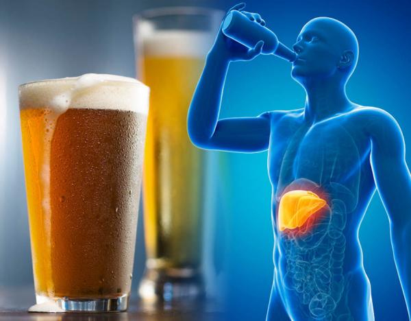 Lạm dụng rượu bia có thể làm tổn thương gan gây xơ gan và ung thư gan