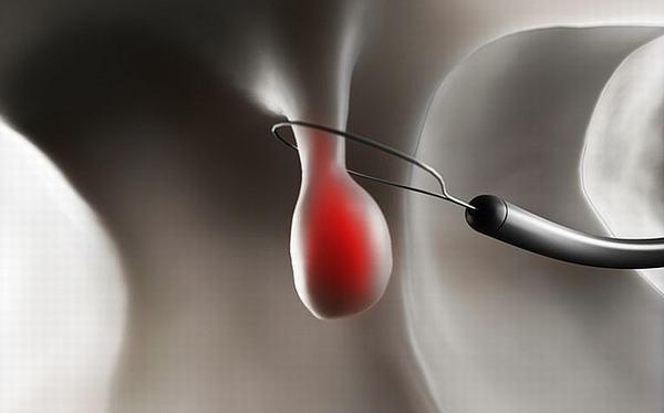 Mổ cắt polyp dạ dày bằng phương pháp nội soi được nhiều người tin tưởng lựa chọn