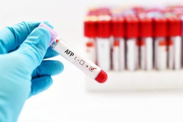 AFP là một chất chỉ điểm ung thư gan được tìm thấy trong máu