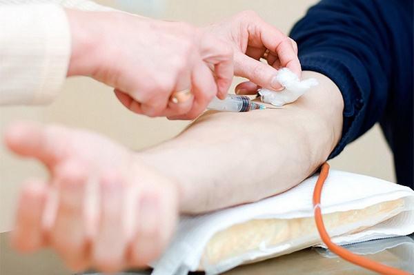 AFP cũng tăng cao trong nhiều trường hợp khác nhau nên người bệnh không nên quá lo lắng