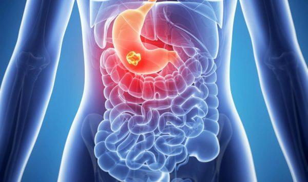 Đau bụng bên trái có thể do ung thư dạ dày