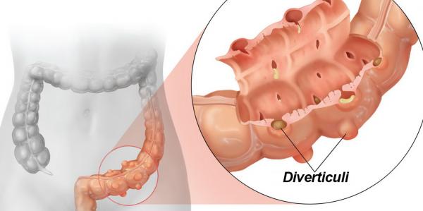Đau bụng dưới bên trái do nhiều nguyên nhân gây ra