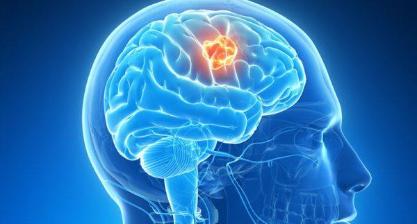 Đau đầu do khối u não