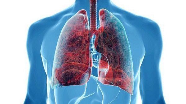 Dấu hiệu bất thường trên da cảnh báo… ung thư phổi