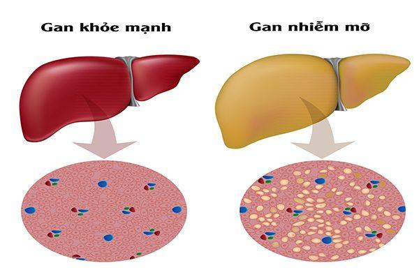Dấu hiệu của các bệnh về gan