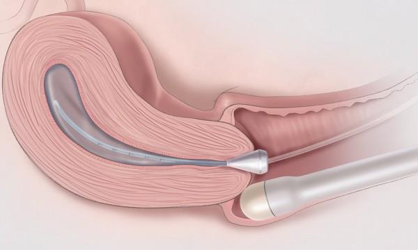 Siêu âm tử cung và phần phụ phát hiện bất thường ở buồng trứng, tử cung