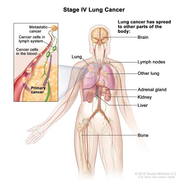 Ung thư phổi giai đoạn cuối có thể di căn rộng đến các cơ quan ở xa, trong đó có não