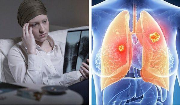 【Lý giải】Là nữ, không hút thuốc lại bị ung thư phổi?