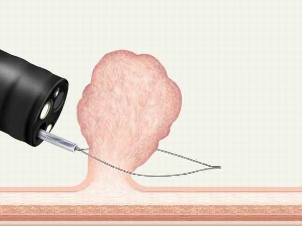 Cắt polyp dạ dày bằng phương pháp nội soi an toàn, hiệu quả cao