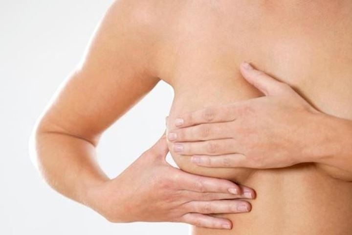 U xơ tuyến vú không nguy hiểm nhưng có thể gây khó chịu cho một số phụ nữ
