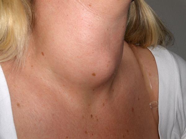 Nhân xơ tuyến giáp là bệnh thường gặp ở nữ giới và có liên quan tới vấn đề nội tiết của cơ thể.