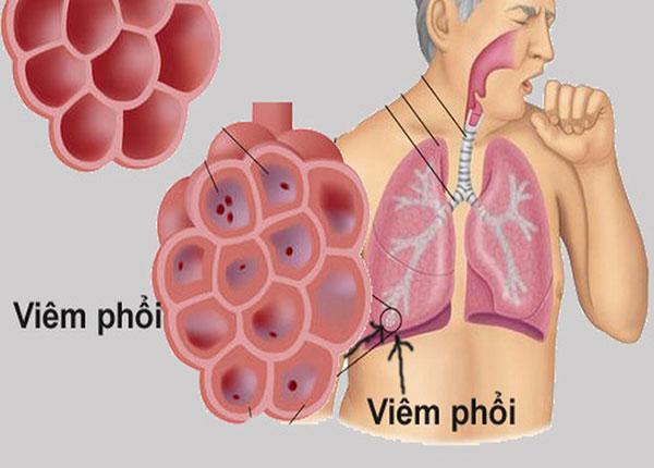 NSE có liên quan đến nhiều bệnh lý lành tính khác như viêm phổi