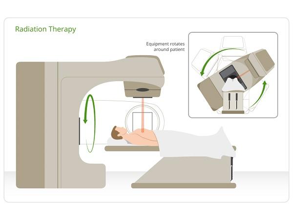 Xạ trị là một trong những phương pháp điều trị ung thư phổi quan trọng