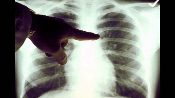 Phân biệt u phổi lành tính và ác tính