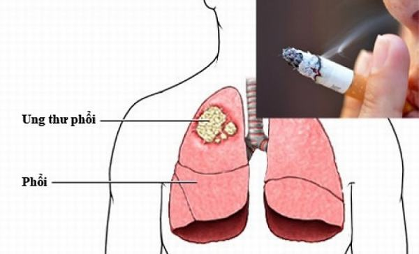 Trong khói thuốc lá chứa ít nhất 250 hóa chất độc hại và khoảng 50 chất có khả năng gây ung thư