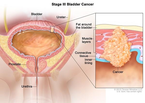 U bàng quang ác tính (ung thư bàng quang) khởi phát từ khối u phát triển ở bàng quang