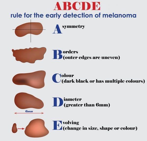 Triệu chứng của ung thư da hắc tố