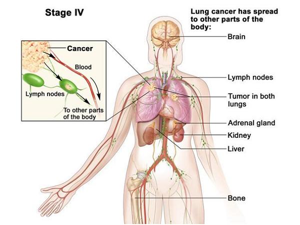Ung thư gan di căn xương là một bệnh nặng, có thể ảnh hưởng tới nhiều vị trí xương trong cơ thể
