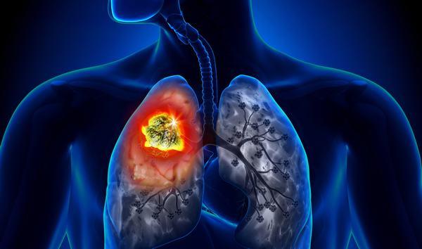 Người trẻ tuổi có nguy cơ cao mắc ung thư phổi