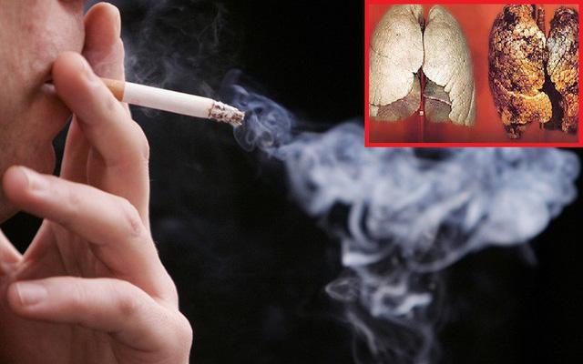 Ung thư phổi có nguyên nhân chủ yếu là do khói thuốc lá