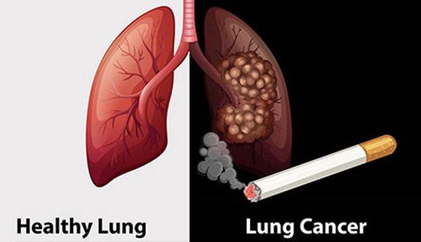 Thuốc lá là nguyên nhân chính gây ung thư phổi và cũng là yếu tố có liên quan nhiều nhất đến số ca tử vong do bệnh gây ra