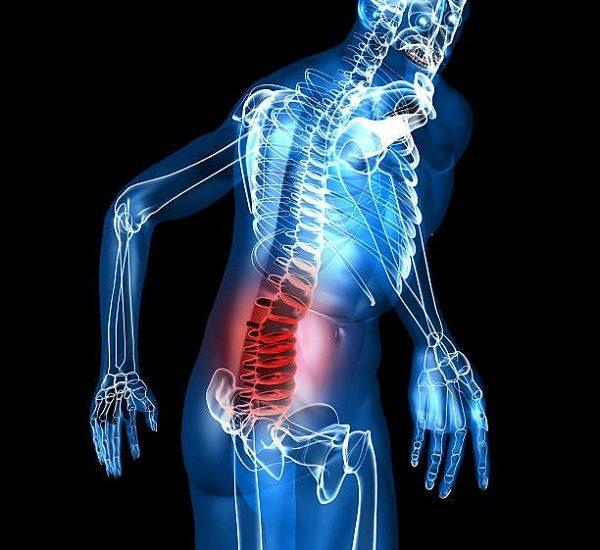 Ung thư phổi di căn xương sống được bao lâu?