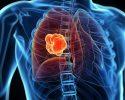 Ung thư phổi thường bị chẩn đoán muộn, làm điều này sớm để tự cứu mình!