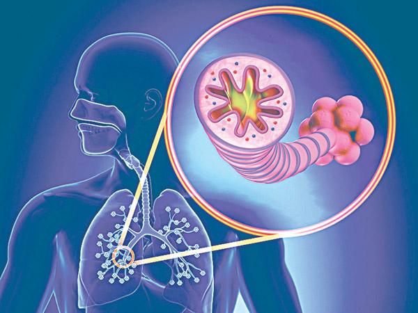 Bệnh ung thư phổi cũng xuất hiện ở những người bị bệnh phổi mạn tính