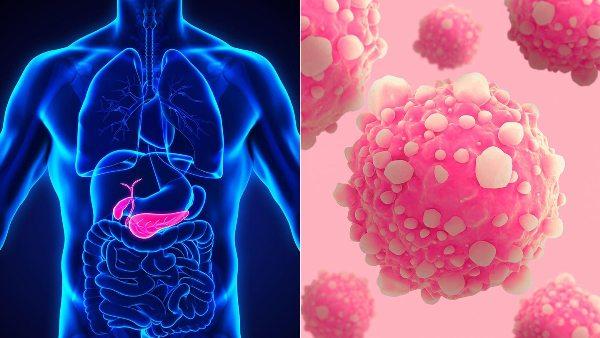 Ung thư tuyến tụy