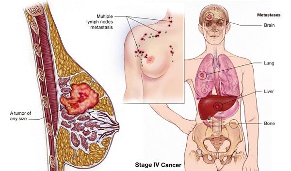 Ung thư vú giai đoạn cuối có khả năng di căn đến nhiều cơ quan, trong đó có não
