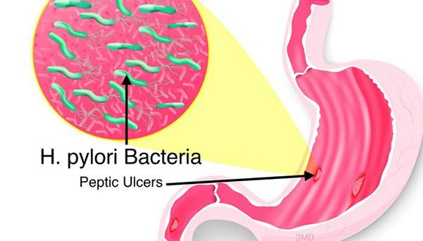 Vi khuẩn HP có thể lây lan từ người này sang người khác qua nhiều con đường khác nhau