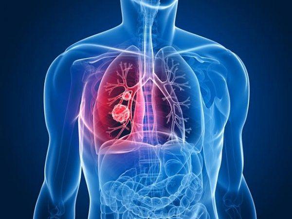 xét nghiệm máu phát hiện ung thư phổi