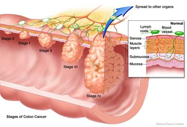 Ung thư đại tràng giai đoạn III