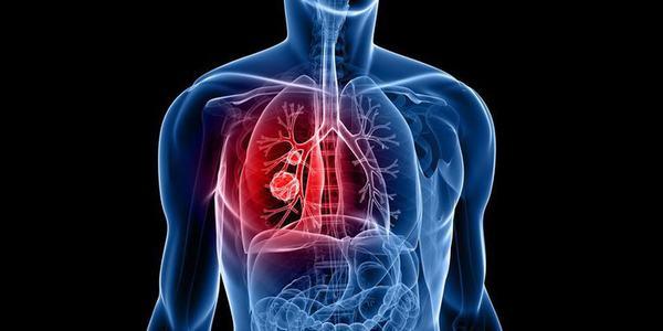 Ung thư phổi là bệnh nguy hiểm nên cần điều trị sớm, đúng phương pháp