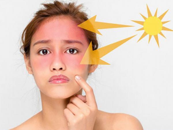 Tránh tiếp xúc trực tiếp với nắng mặt trời ở cường độ cao là cách hiệu quả giúp ngăn ngừa ung thư da