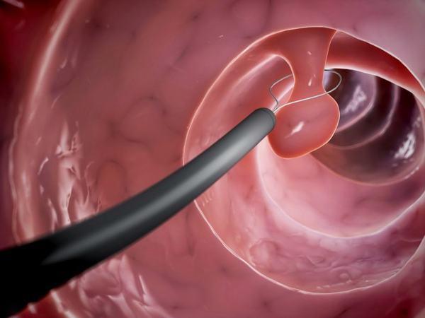 Polyp trực tràng có kích thước lớn hoặc nghi ngờ ung thư cần được cắt bỏ